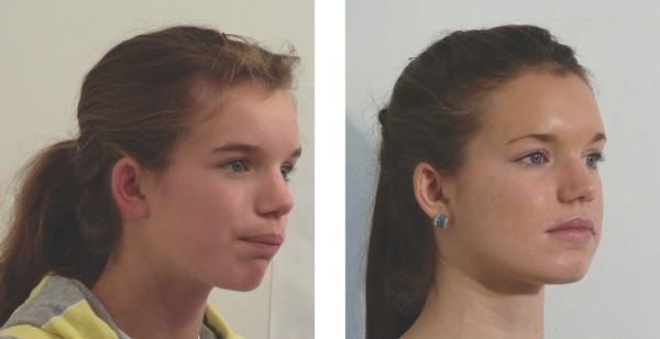Chin exercises receding 10 Best